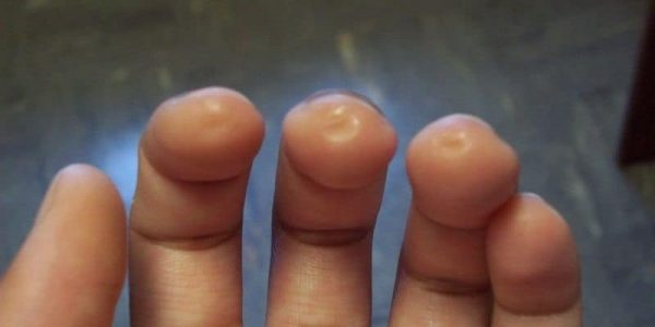 picture of calluses from playing guitar