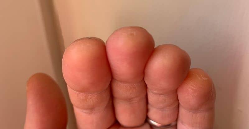 example of guitar calluses
